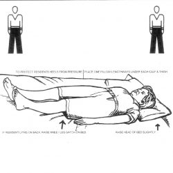 Positioning-Supine